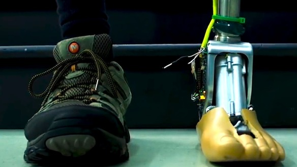 """Meet The World's First """"Smart"""" Ankle"""